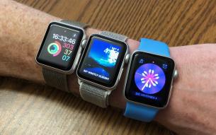 Ξεκάθαρος ηγέτης στην αγορά των smartwatches το Apple Watch