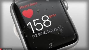 Το Apple Watch έσωσε τη ζωή του 76-χρονου Gaston D'Aquino