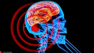 Μπορεί η ακτινοβολία των κινητών τηλεφώνων να προκαλέσει καρκίνο;